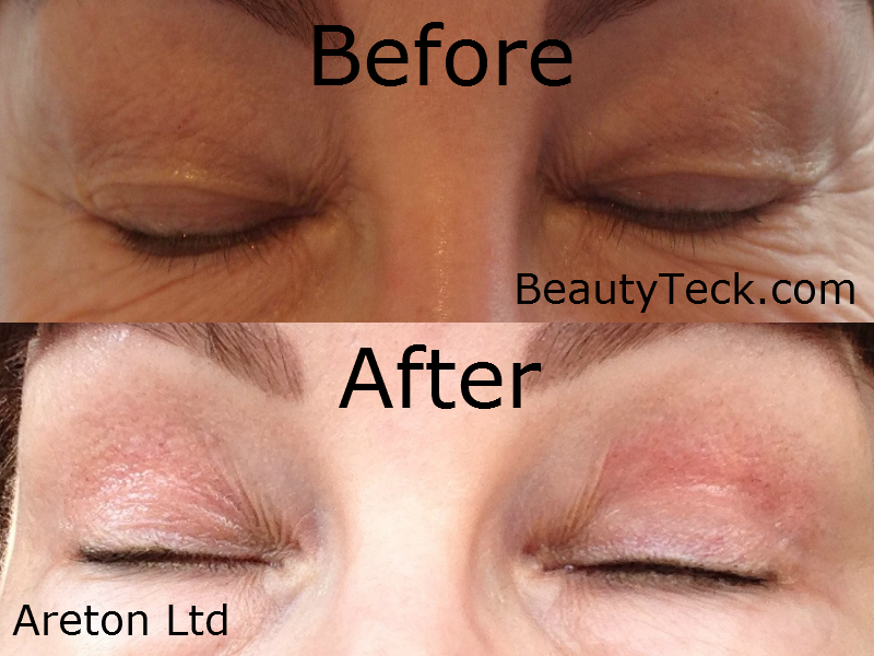 Eyelid tightening for advert