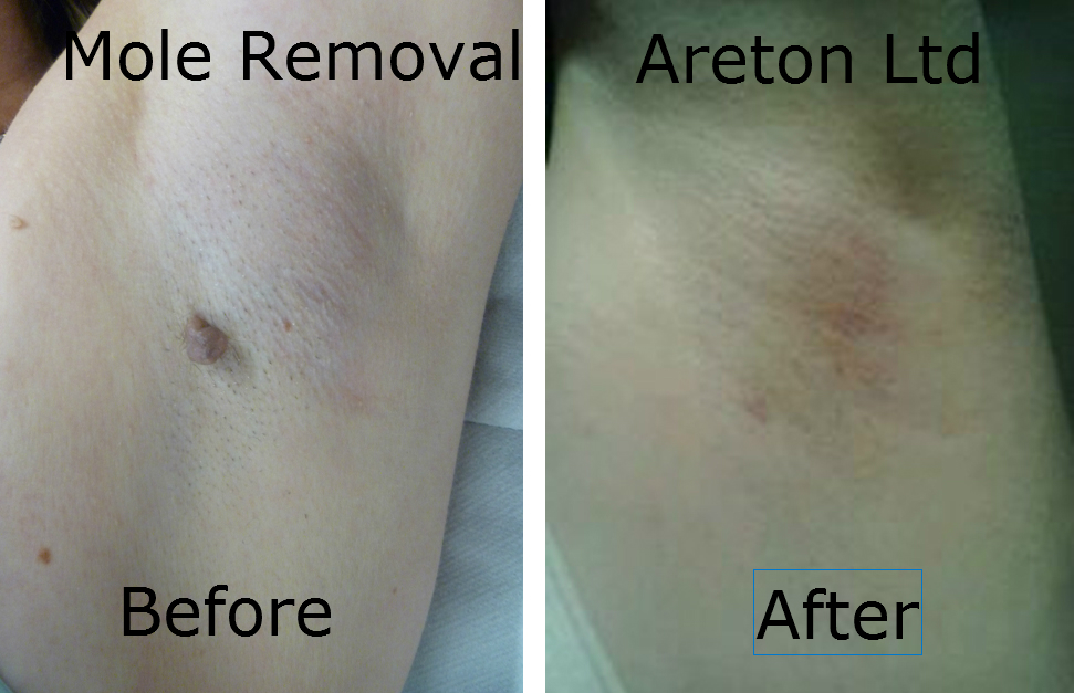 Mole Removal Before and After!